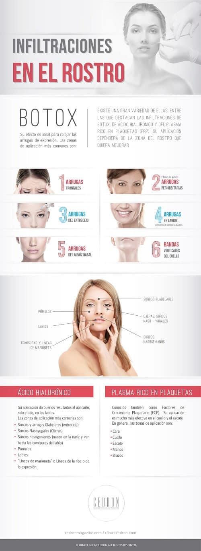 Tipos de infiltraciones en el rostro más efectivas #infografía