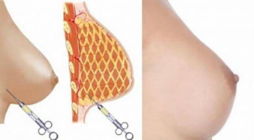 tecnica-aumento-senos