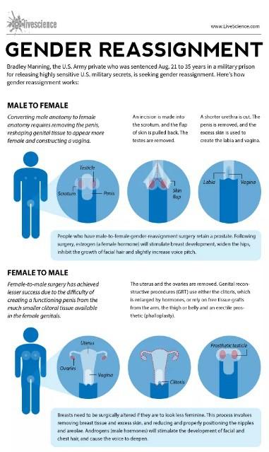 En qué consiste la cirugía de reasignación de sexo #infografia