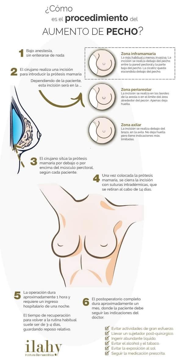 infografia-aumento-pecho