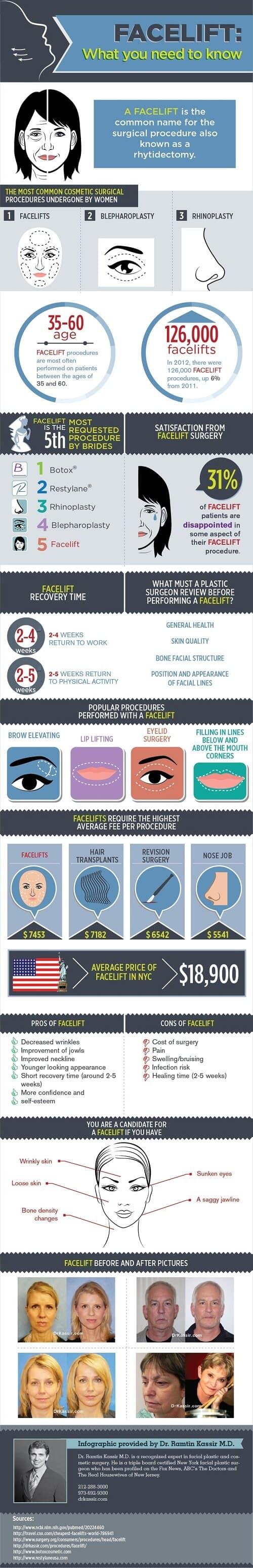 Aclara todas las dudas sobre el lifting facial #infografía