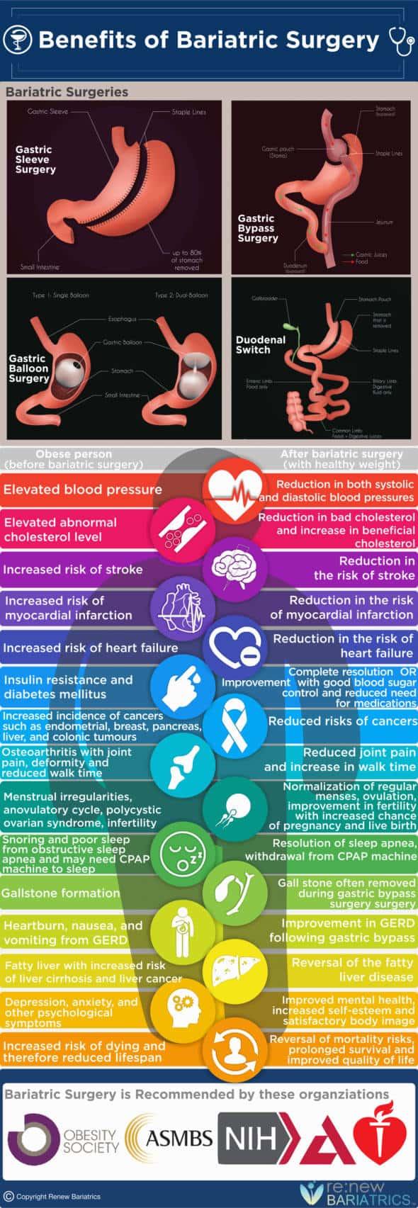 beneficios de la cirugía bariátrica