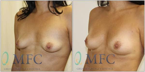 aumento de senos con lipofilling