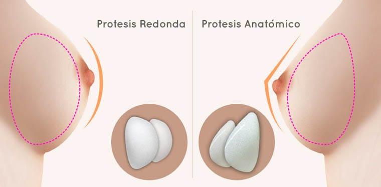 tipos de implante mamario