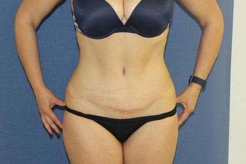 cicatriz ideal de abdominoplastia