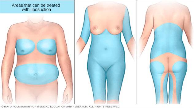 Areas a tratar con liposuccion