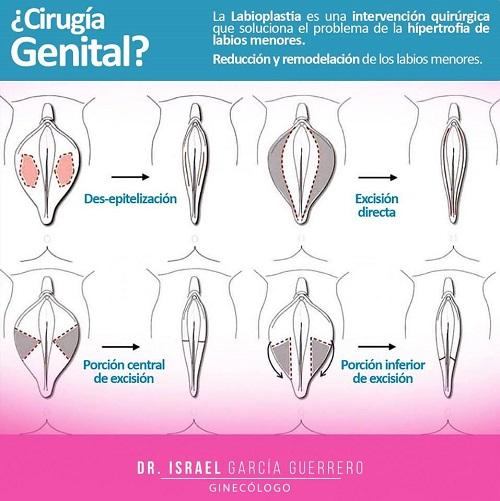 Razones para hacerse una labioplastia #infografia