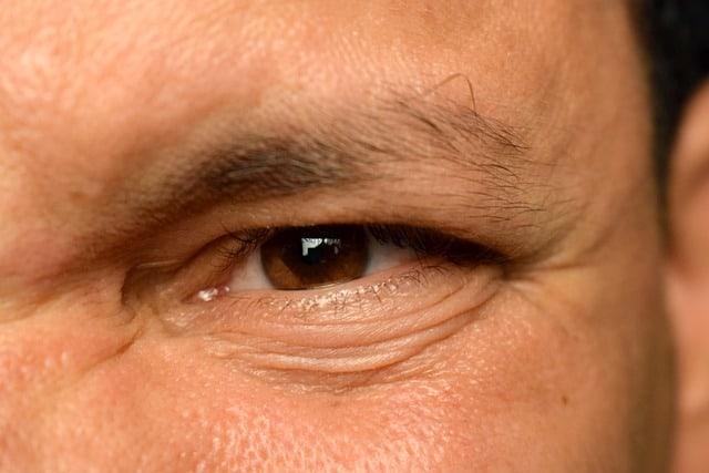 cirugia facial hombres