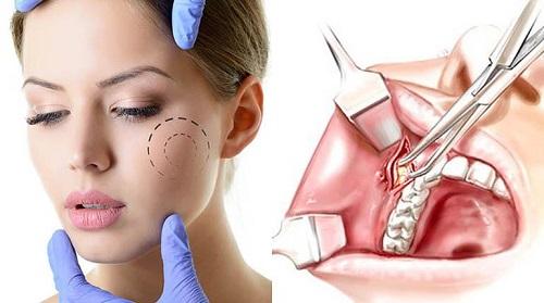 cirugía para rostro redondo