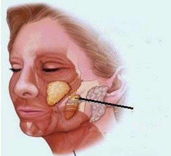 Bolas-de-Bichat-Bichectomia
