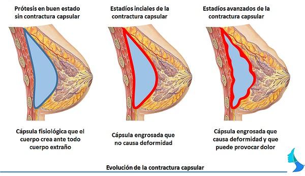 contractura muscular infografia