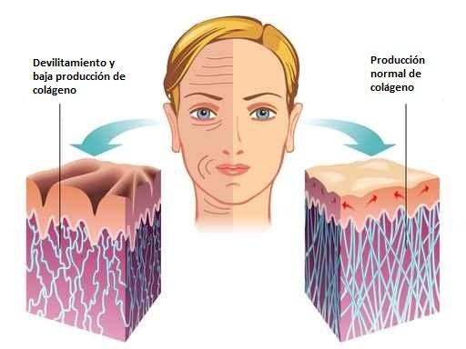 cómo prevenir la pérdida de colágeno #infografia