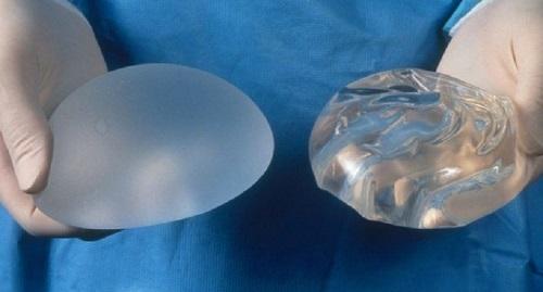 tipos de implantes mamarios